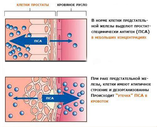 Повышение количества клеток ПСА в крови