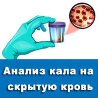 Анализ кала на скрытую кровь: показания и правила подготовки
