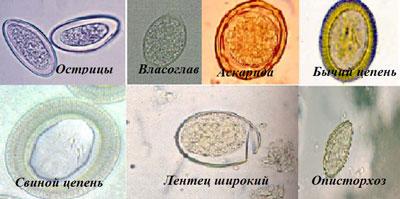 Виды глист в результатах анализа на яйца гельминтов