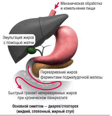 Стеаторея – жирный кал
