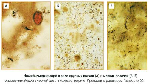 Йодофильная флора в кале в копрограмме